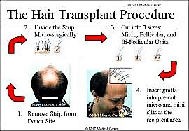 987786ff 03ce 4303 aac9 9310f647ef5a - Scalp Micropigmentation vs. Hair Transplant Surgery – Which Is Better?
