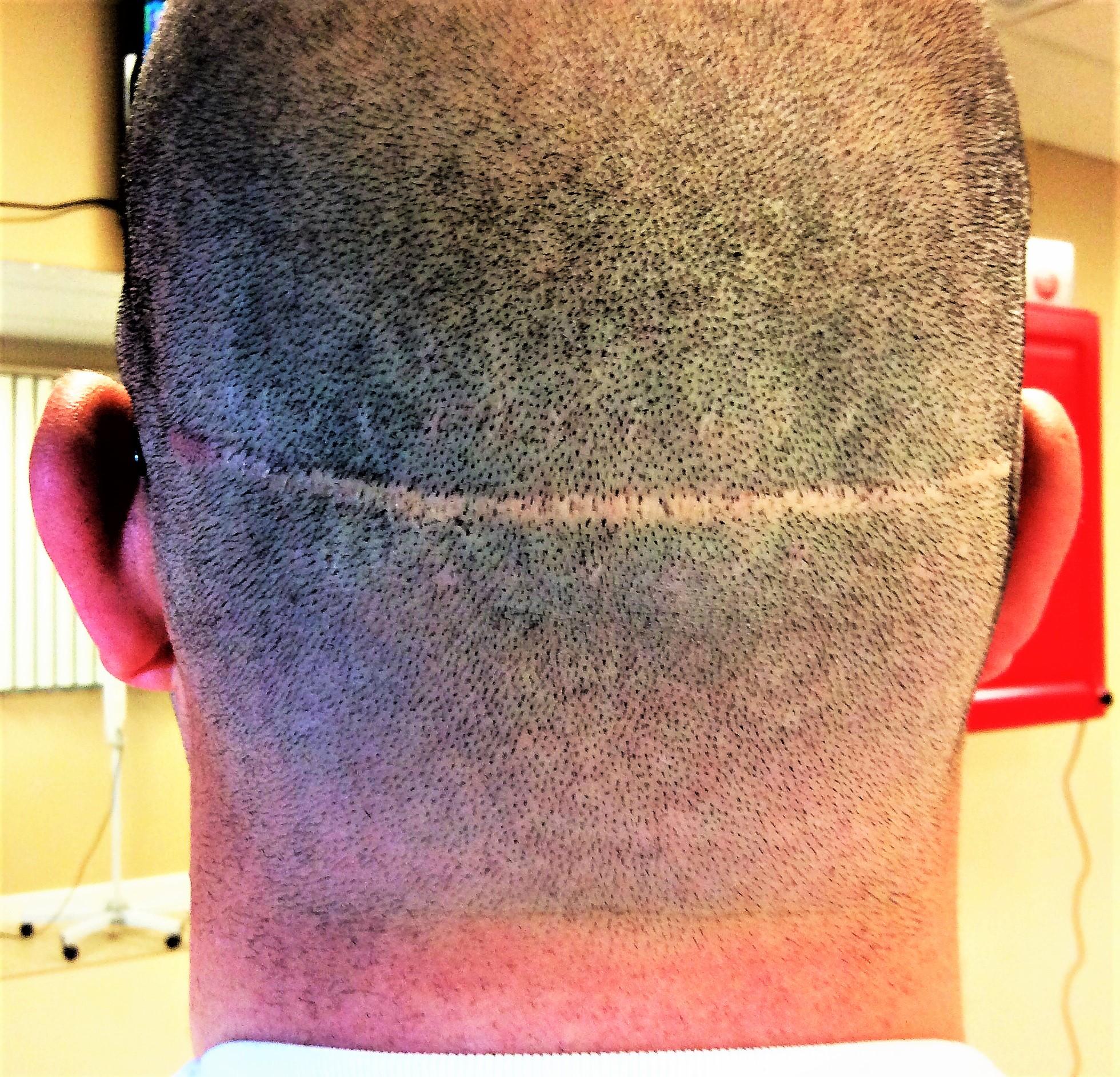 abc042b7 9aaf 413c 8044 3ba6f07920ba 300x289 - Scalp Micropigmentation vs. Hair Transplant Surgery – Which Is Better?