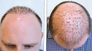 cc9519b0 1c53 4778 81ee 1eebfc14a52c - Scalp Micropigmentation vs. Hair Transplant Surgery – Which Is Better?