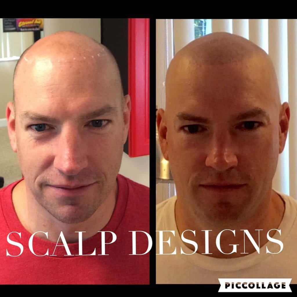 Why Scalp Designs is the Best SMP Provider