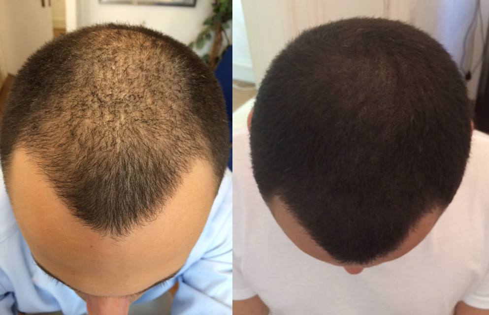 Covering Up Baldness with Micro Scalp Pigmentation