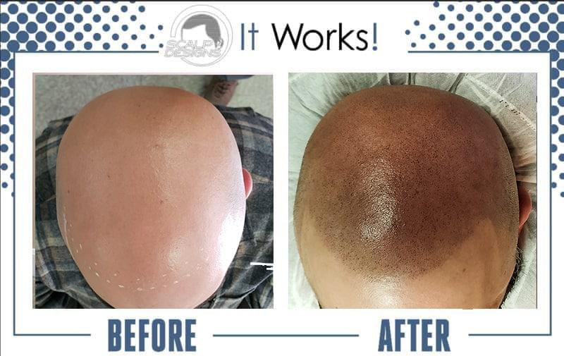 receding hair line solution