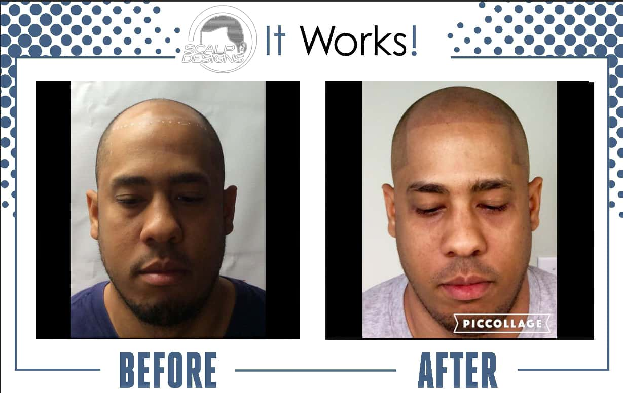 "It's a no brainer  ""Guarantee d  Realistic looking Results"" has made Scalp  Micropigmentation the #1 Hair loss Choice  in 2018"