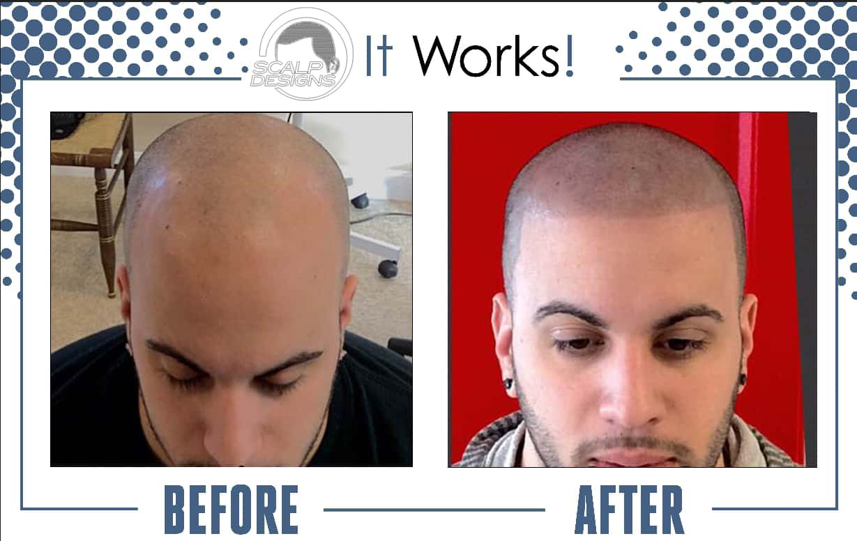 Scalp Designs performs a revolutionary hair loss solution called Scalp Micro-pigmentation