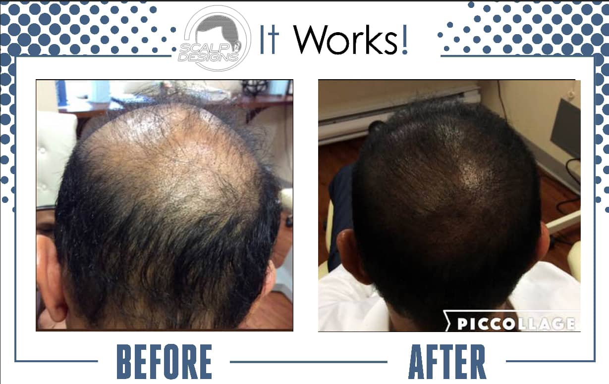 balding solution