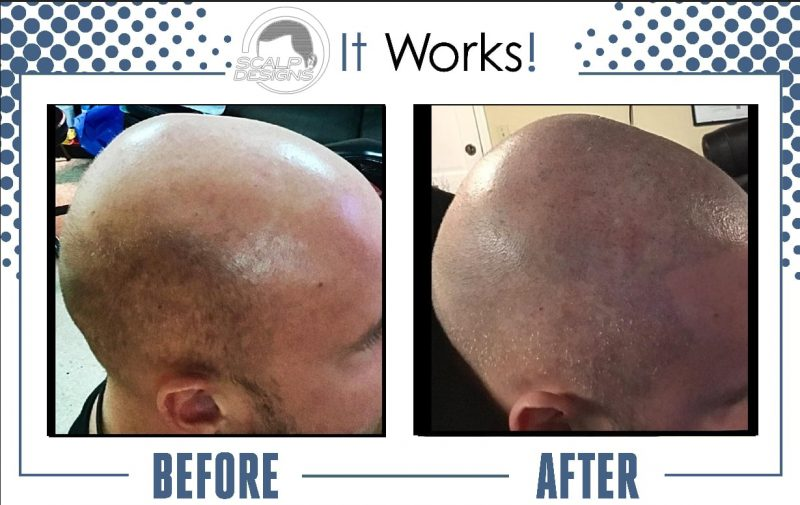 What should you know before giving a try to Micro scalp pigmentation?