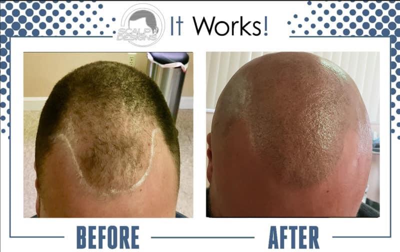 The Best Hair Loss Treatment