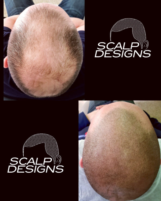 thickening hair with smp