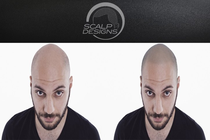 The Benefits of Scalp Micropigmentation as a Non-surgical procedure