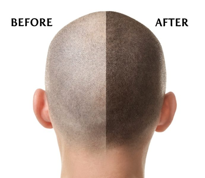Scalp MicroPigmentation Results – Before And After