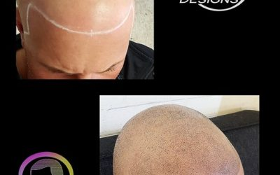 What You Need To Know About Scalp Micro Pigmentation